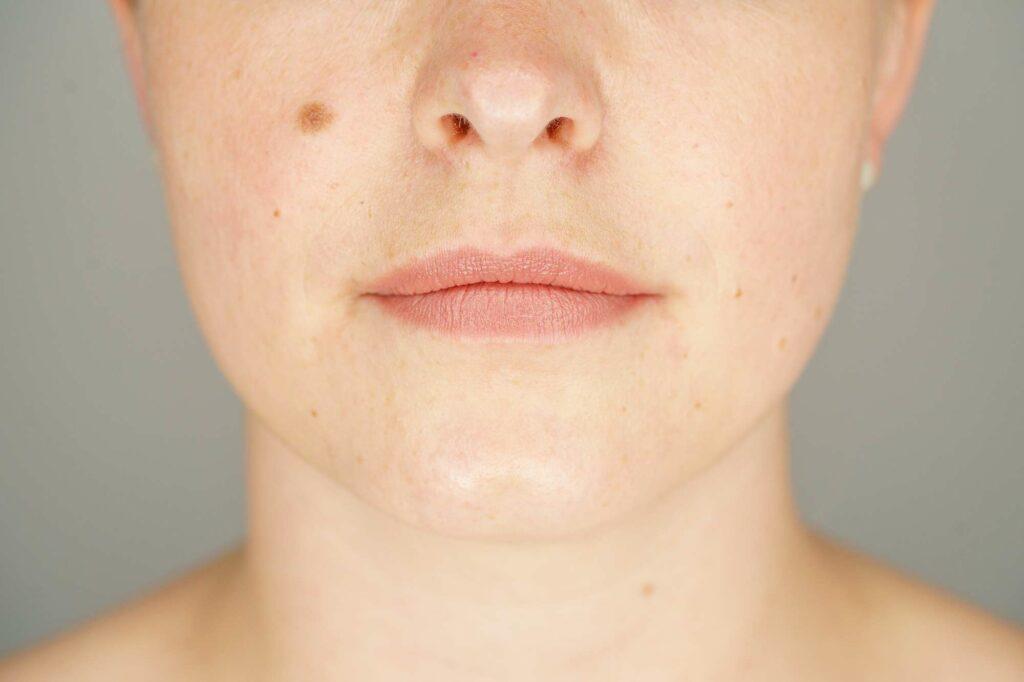 Gesicht Final 4
